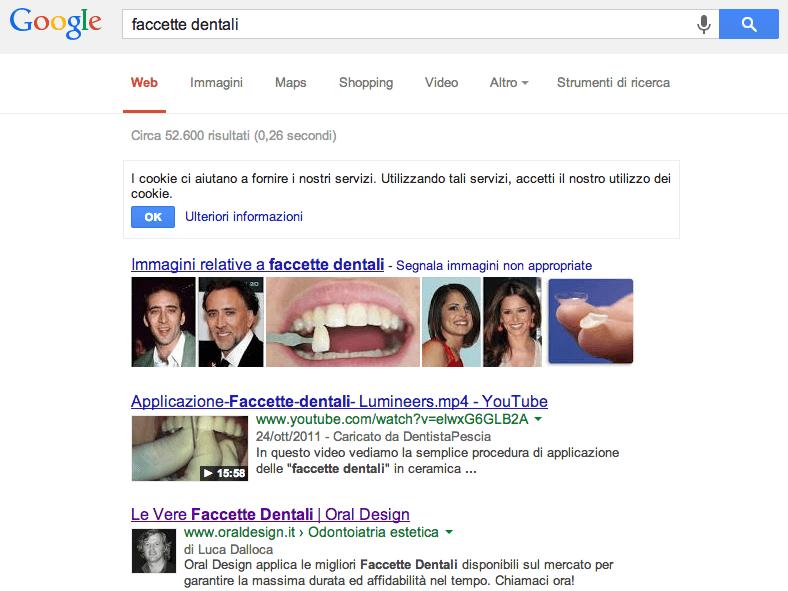 Oral Design Faccette Dentali